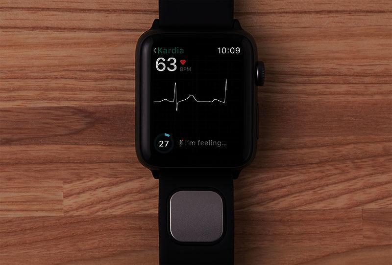 «FDA» представило «Kardiaband» от «AliveCor» для «Apple Watch»
